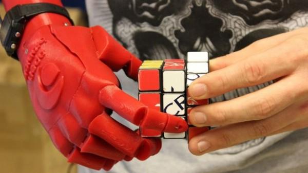 14χρονος έφτιαξε μόνος του ρομποτικό χέρι για τον κολλητό του